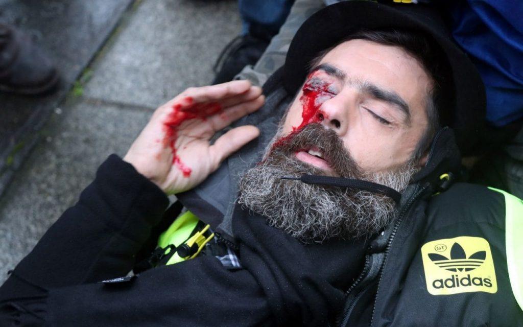 La police française fera face à des accusations pour blessures causées par un gilet jaune